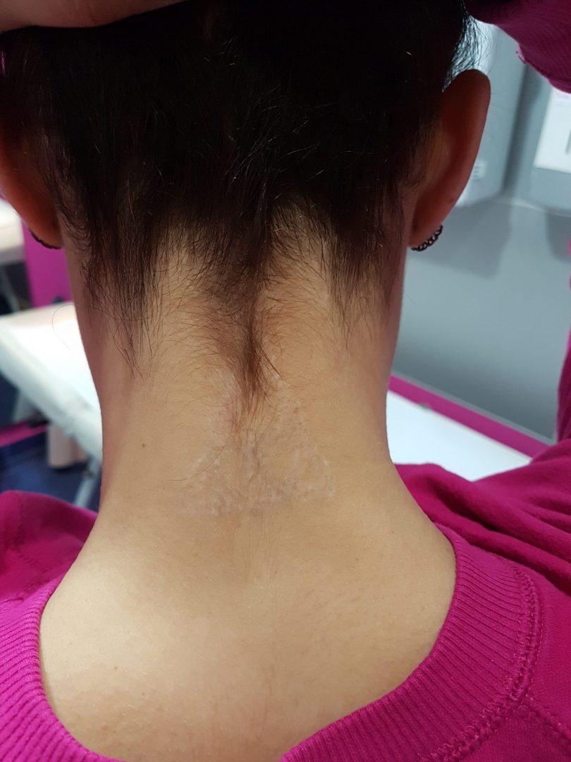 Cuello (1)
